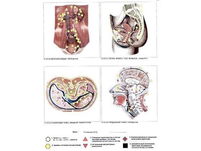 ВРТ полное обследование организма  Диагностика