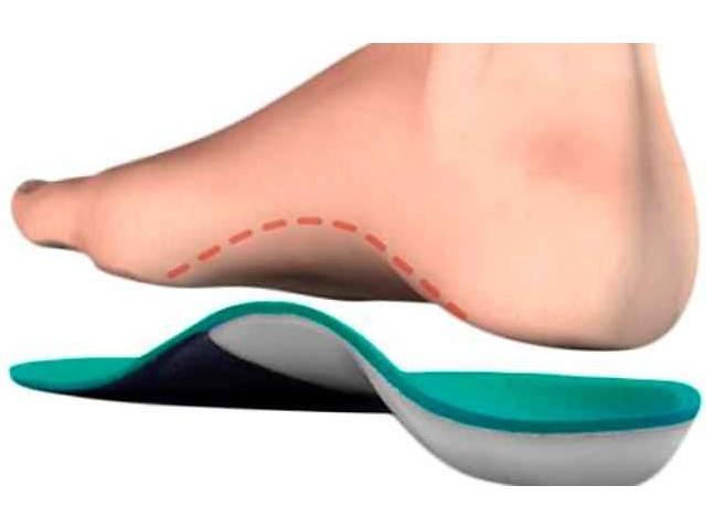 Ортопедические стельки ВП-1, ВП-2, ВП-3, ВП-5 индивидуальные в Запорожье- объявление о продаже  в Запорожье