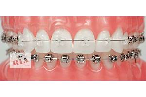 Стоматолог - ортодонт. Постановка брекетов.