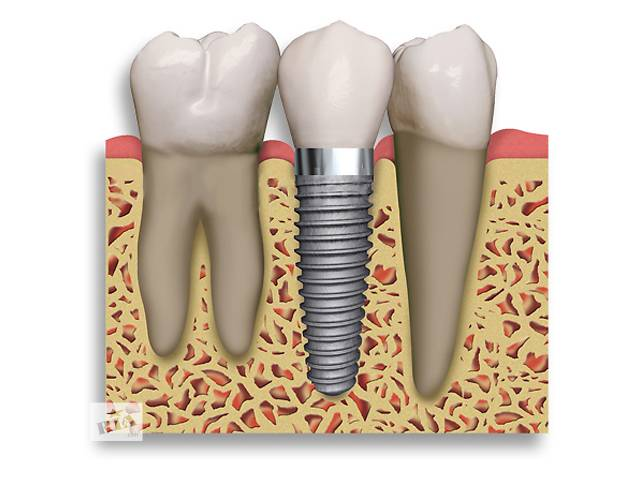 Стоматология ,, iDent,,- объявление о продаже  в Кривом Роге